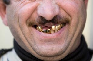 golden-teeth_2