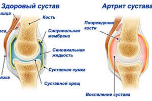 artrit-sustava